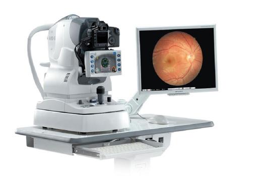 imagen-retinografia